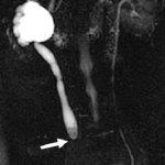 Гидронефроз левой половины