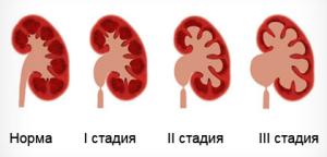 Пиелоэктазия: причины, симптомы, диагностика, лечение