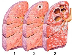 Формы туберкулёза