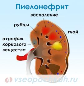 Пиелонефрит формы