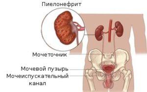 Пиэлонефрит