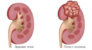 adenoma-pochki