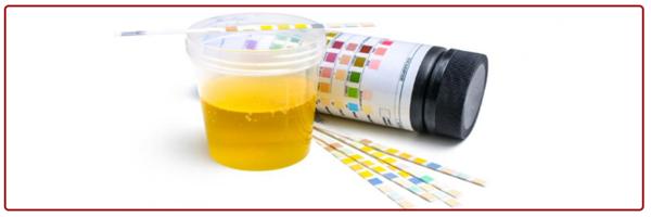 analizy-pri-glomerulonefrite