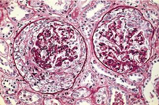 Пораженные ткани под микроскопом